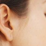 correcion-agujeros-oreja