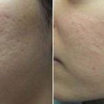 tratamiento-cicatrices