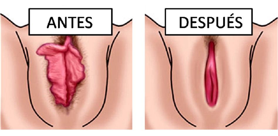 reduccion de labios