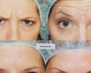 Botox para que sirve